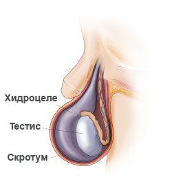 hidrocele-anatomu