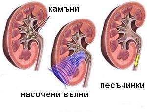 shock-wave-lithotripsy-image